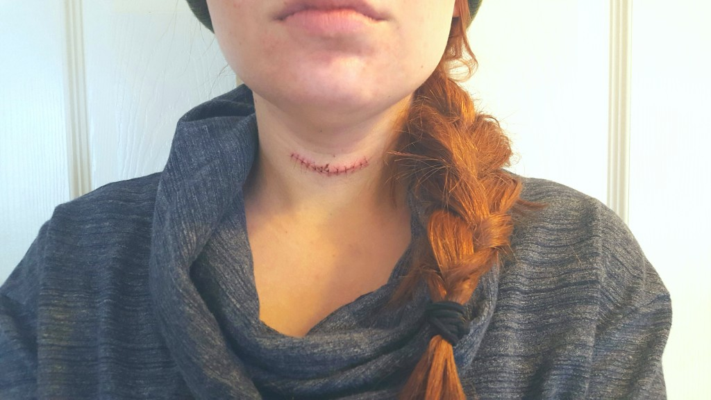 Oh Julia Ann - Thyroid Cancer Removal Scar